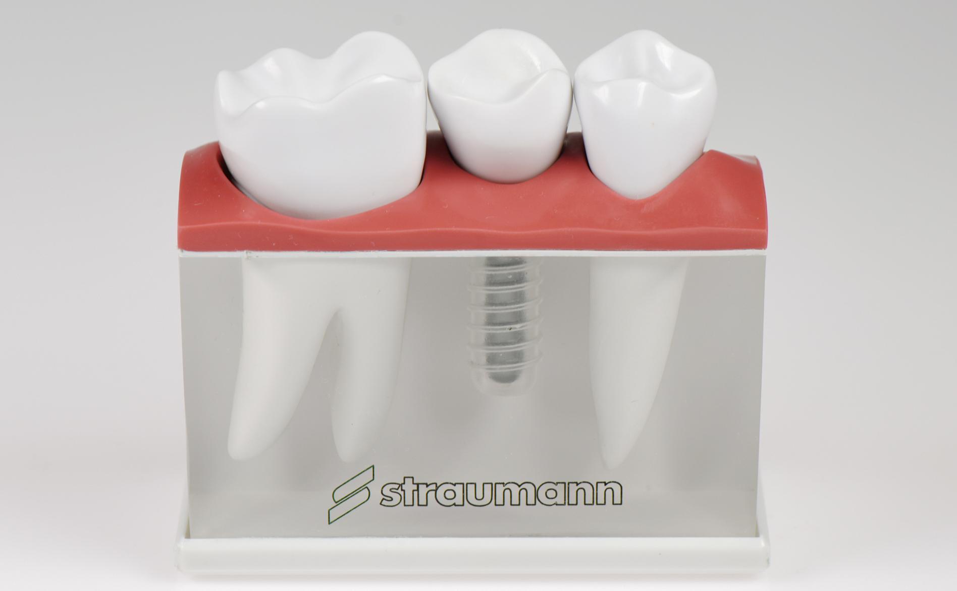 Что такое зубной имплантат?